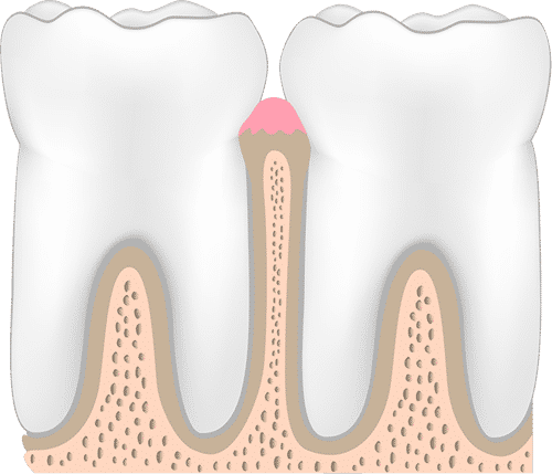stage one of periodontal disease healthy teeth and gums